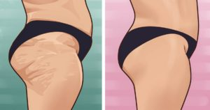 Ways to reduce the appearance of cellulite